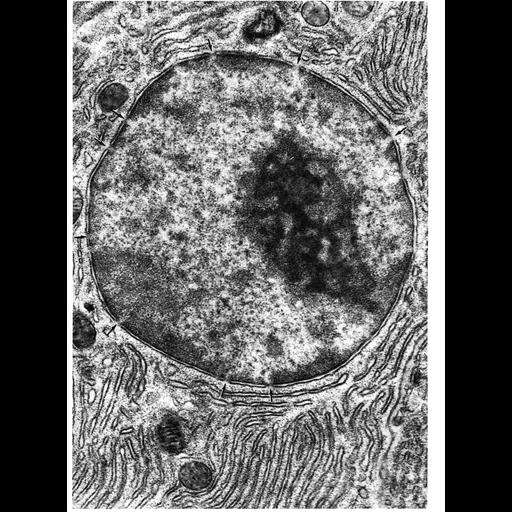 pancreatic acinar cell