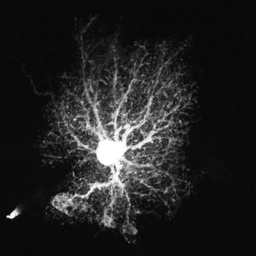 astrocyte