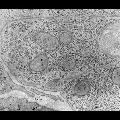 intestinal cell